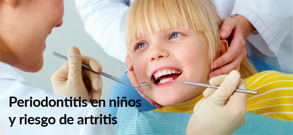 Periodontitis en niños y riesgo de artritis