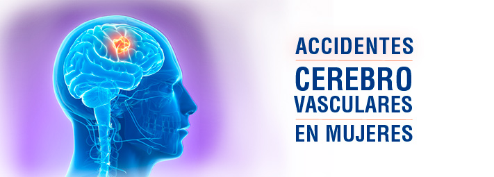 Accidentes cerebrovasculares en mujeres