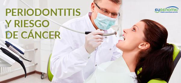 Periodontitis y riesgo de cáncer