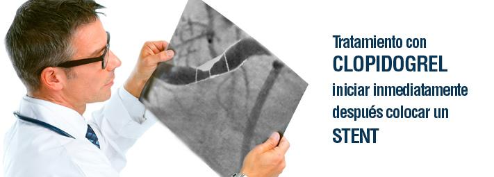 Tratamiento con clopidrogrel iniciar inmediatamente después de colocar stent