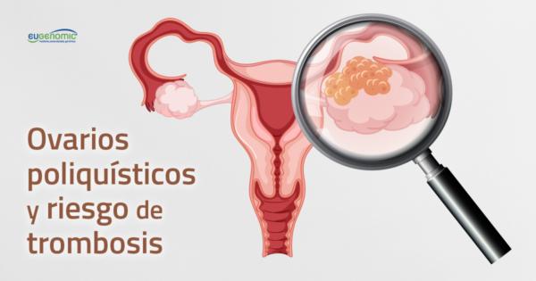 Ovarios poliquísticos y riesgo de trombosis